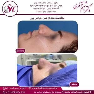 جراحی بینی اصفهان 69