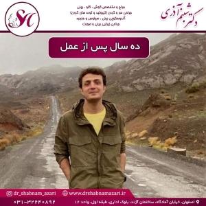 جراحی بینی اصفهان 71