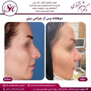 جراحی بینی اصفهان 72