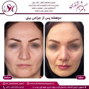 جراحی بینی اصفهان 73