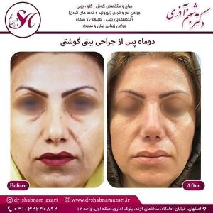 جراحی بینی اصفهان 74