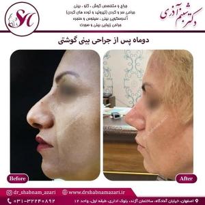 جراحی بینی اصفهان 75