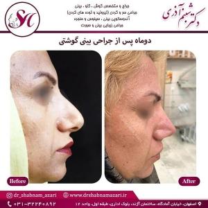 جراحی بینی اصفهان 76