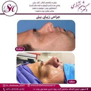 جراحی بینی اصفهان 77