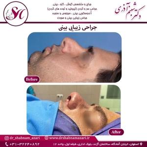 جراحی بینی اصفهان 78