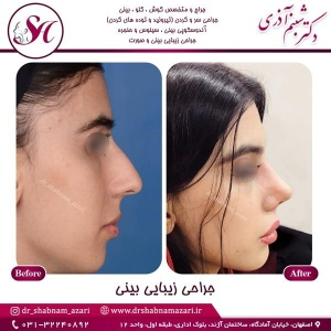 جراحی-بینی-اصفهان-84
