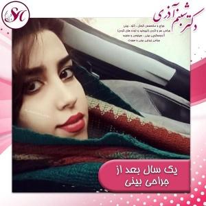 جراحی-بینی-اصفهان-85