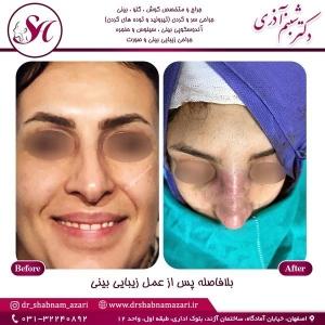 جراحی-بینی-اصفهان-86