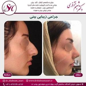 جراحی بینی اصفهان 9