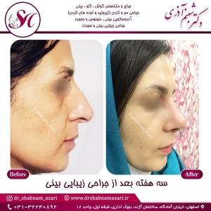 جراحی-بینی-اصفهان-92