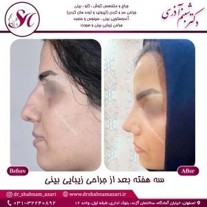 جراحی-بینی-اصفهان-93