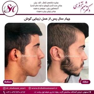 جراحی گوش اصفهان 2
