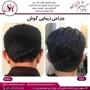 جراحی گوش اصفهان 4