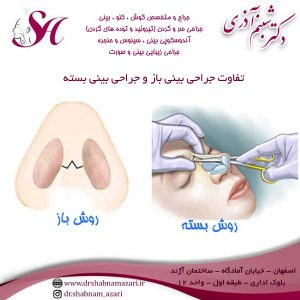 تفاوت جراحی بینی باز و جراحی بینی بسته